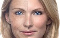 Laser Skin Tightening Toronto: